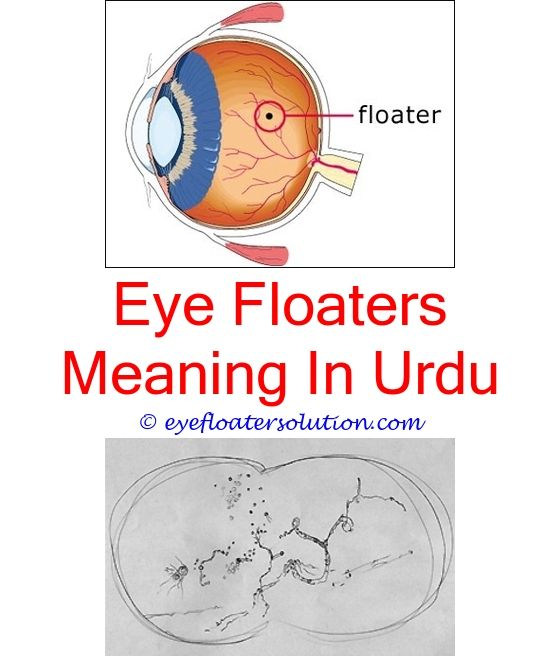 Cloudy Vision In One Eye Floaters. Seeing Floaters In Eyes Seeing Flashing  Lights ...