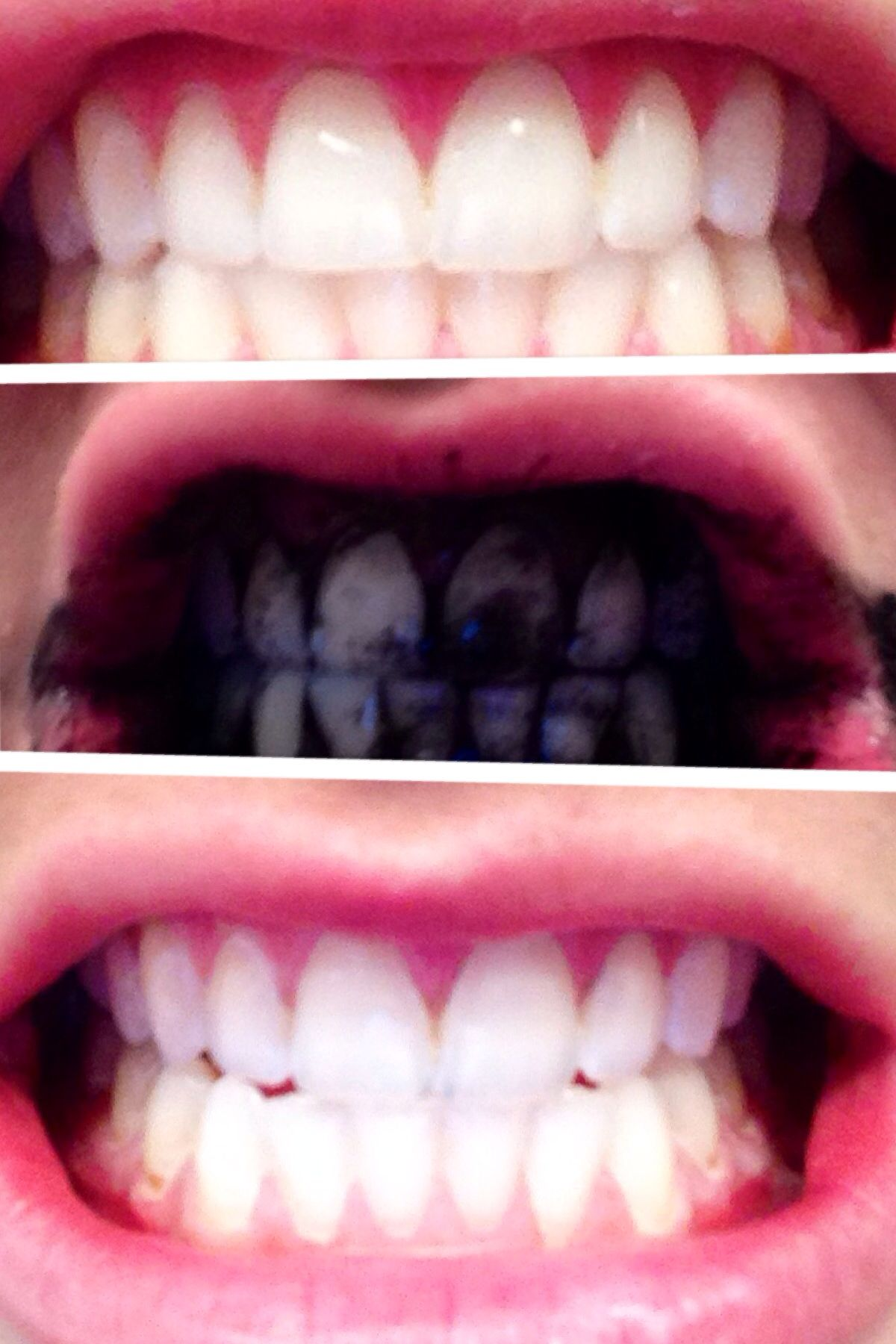 Activated Charcoal Whitens Teeth Open The Capsules And Empty A Few