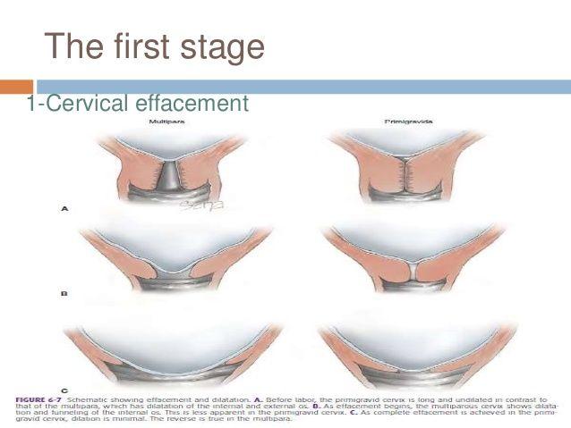 Image result for cervical effacement medical illustrations pinterest image result for cervical effacement ccuart Gallery