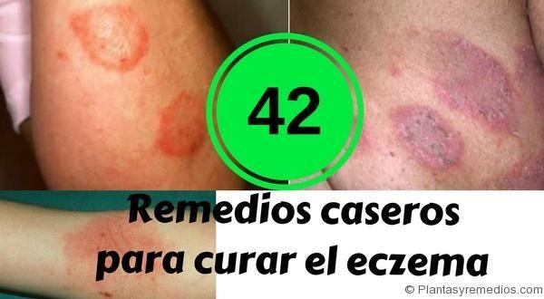 Remedios Caseros Para Curar El Eczema Remedios Remedios Caseros Curar