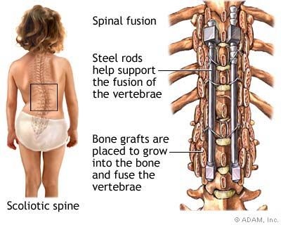 29++ Scoliosis of lumbar spine inspirations