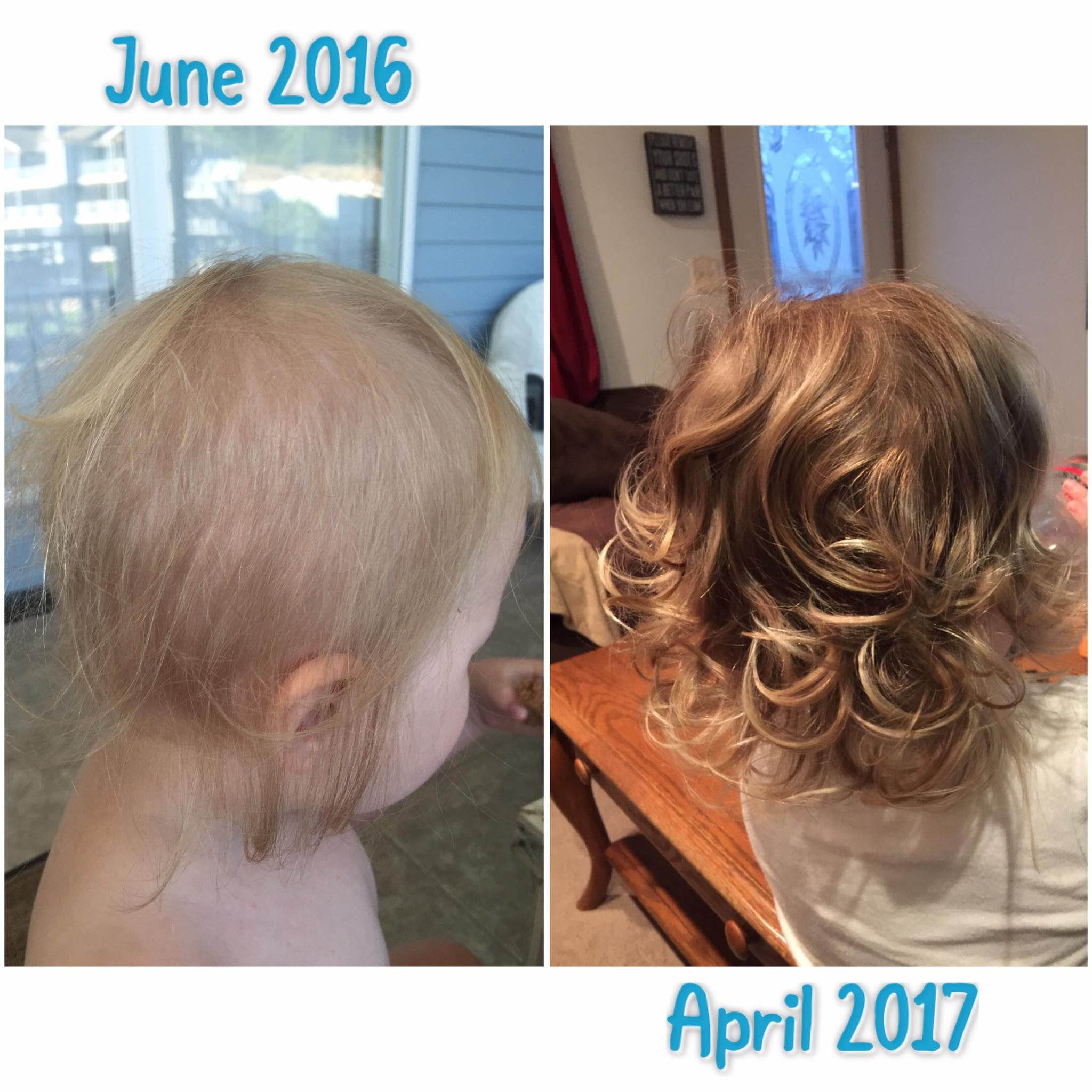 Baby S Thin Hair Look At How Much Thicker Her Hair Is Started With Revive Shampoo And In January Switched To Thick Hair Remedies Thick Hair Styles Monat Hair