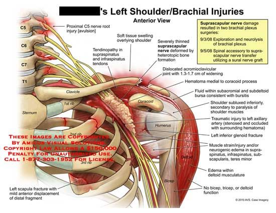 Left Shoulderbrachial Injuries My Problems Pinterest Anatomy