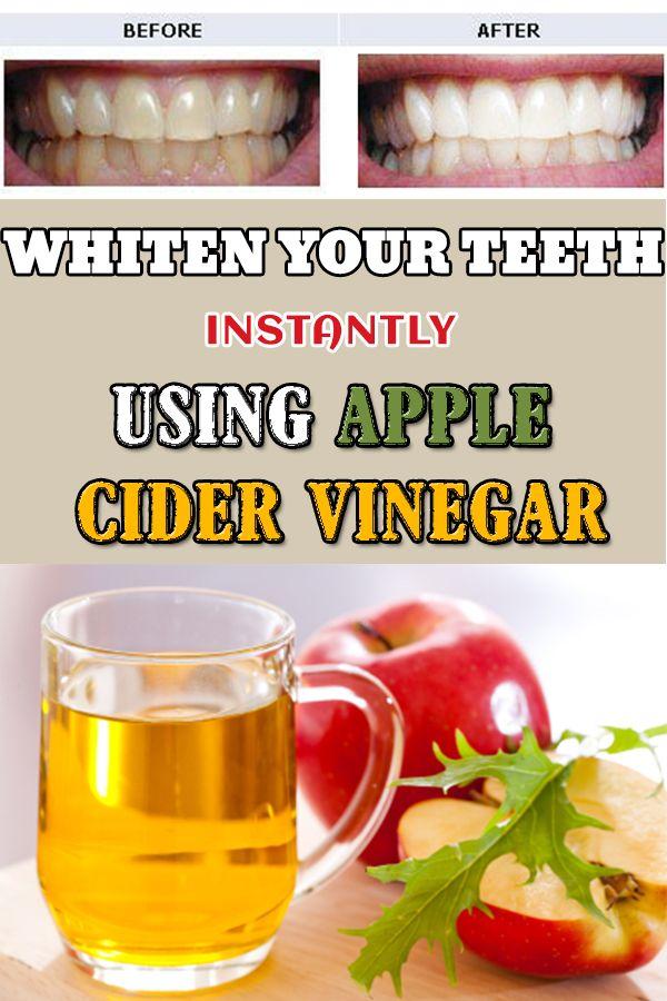 X1x1apple Cider Vinegar Best Home Remedy For Whiter Teeth Tips
