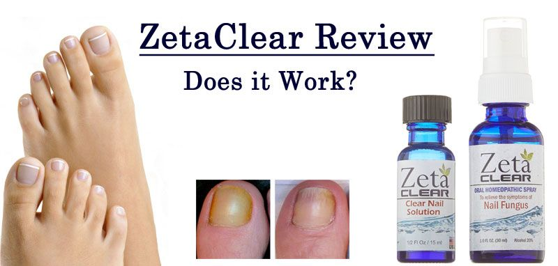 How Long Does It Take For Zetaclear To Work Effectively Nail