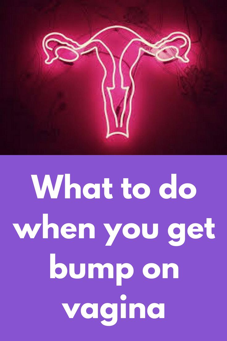 lumps-on-vagina-non-nude-babe-porn