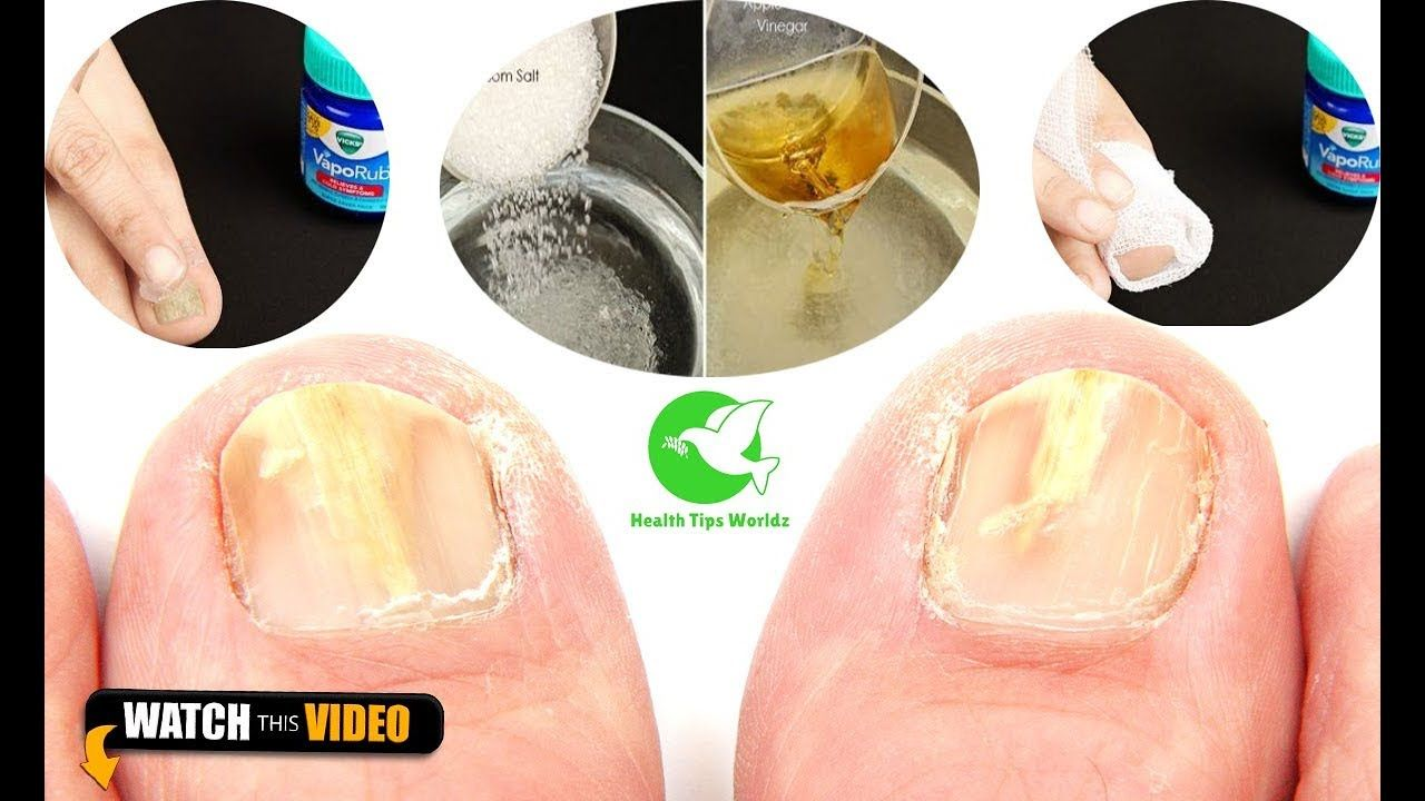 How to get rid of toenail fungus fast at home in a day