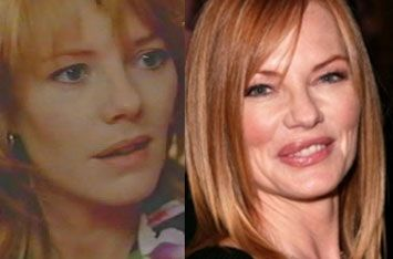 celebrity surgery gone wrong | Marg Helgenberger Cosmetic ...