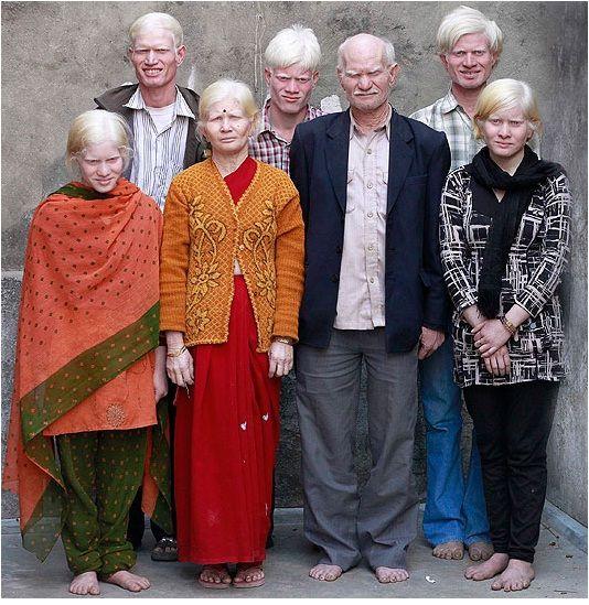 Albino Indians