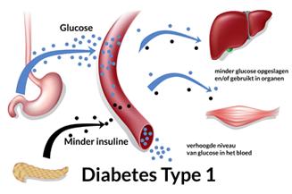 Was muss ein Diabetiker vom Typ I und Typ II bei der Ernährung beachten