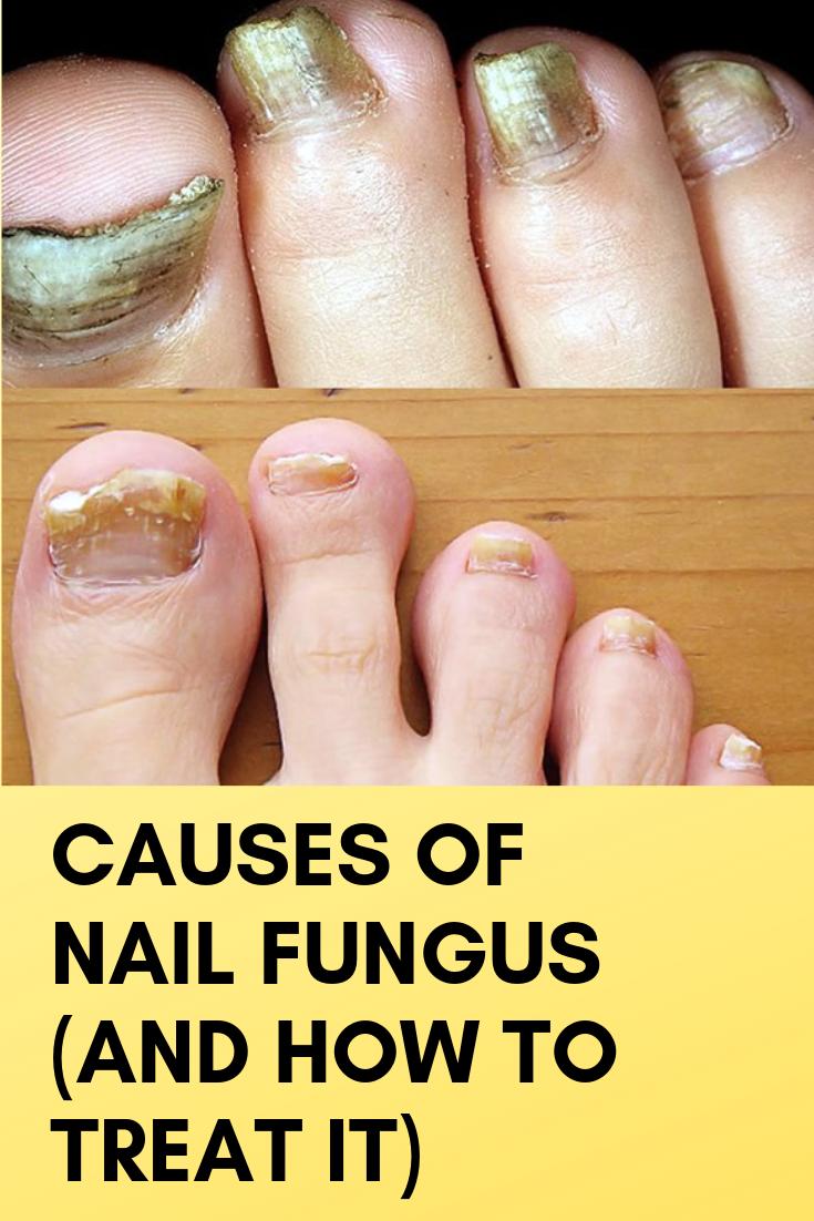 Causes Of Nail Fungus And How To Treat It Nail Fungus Nail
