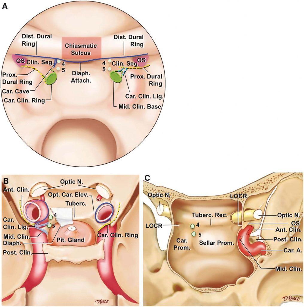 Sphenoid Sinus Anatomy Anatomynote Anatomy Note World