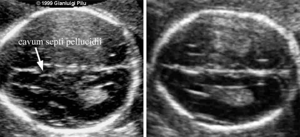 Normal vs Agenesis of corpus callousness Sonography Pinterest - ultrasound student resume