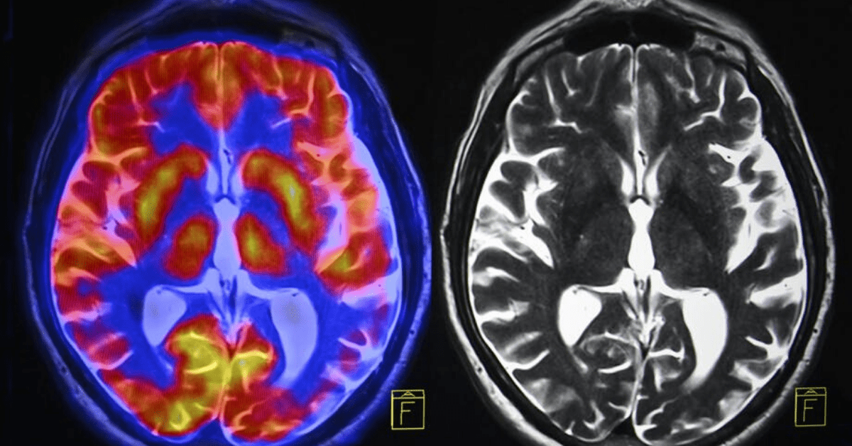 How chronic stress changes the brain — and what you can do ...