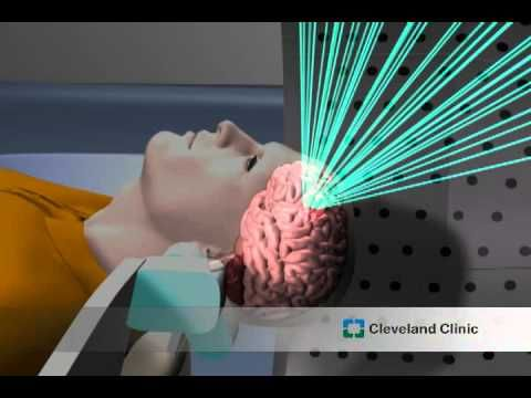 Image result for New Brain Stimulation Therapy For Fibromyalgia