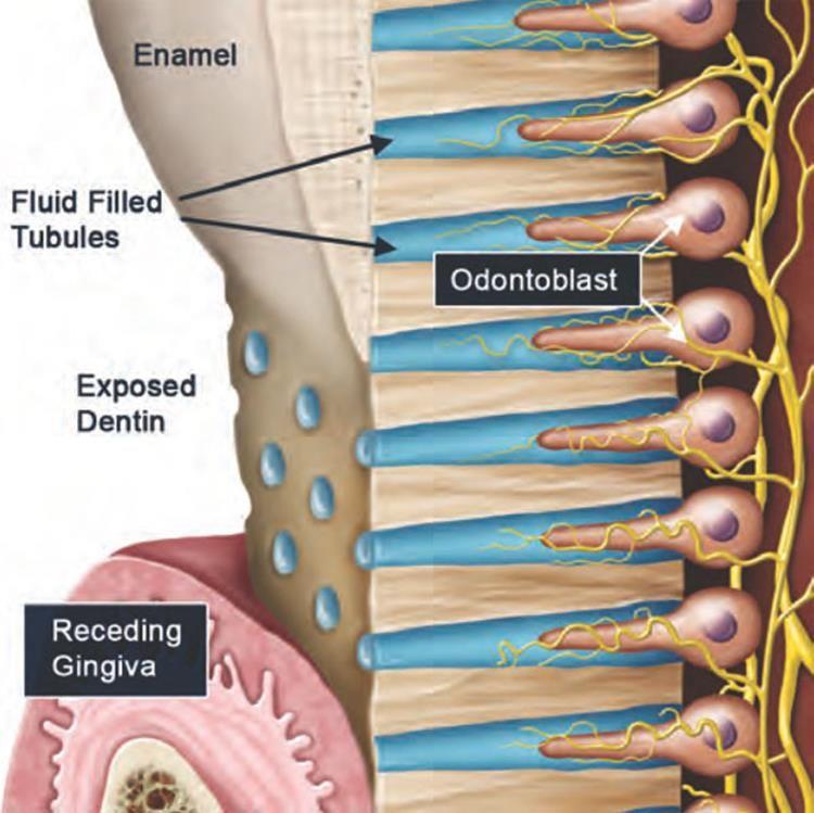 Odontoblastic Process Full Histology Dental Dental