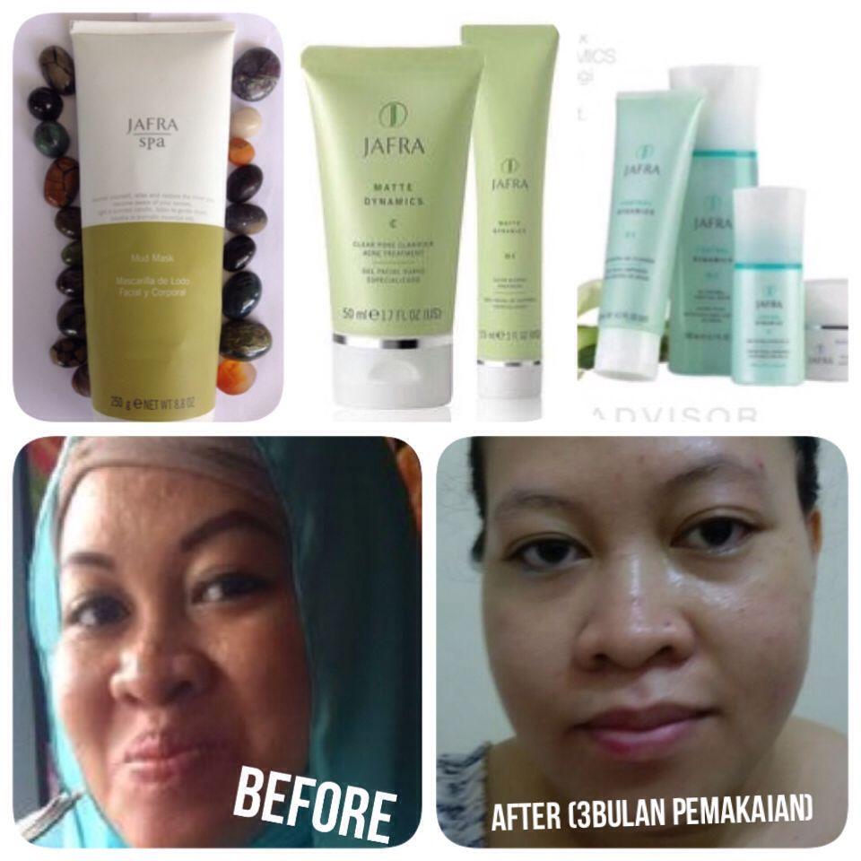 Skincare Jafra Untuk Kulit Berminyak Dan Berjerawat