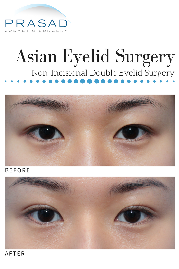 Asian Eyelid Surgery – Double eyelid surgery | Plastic Surgery