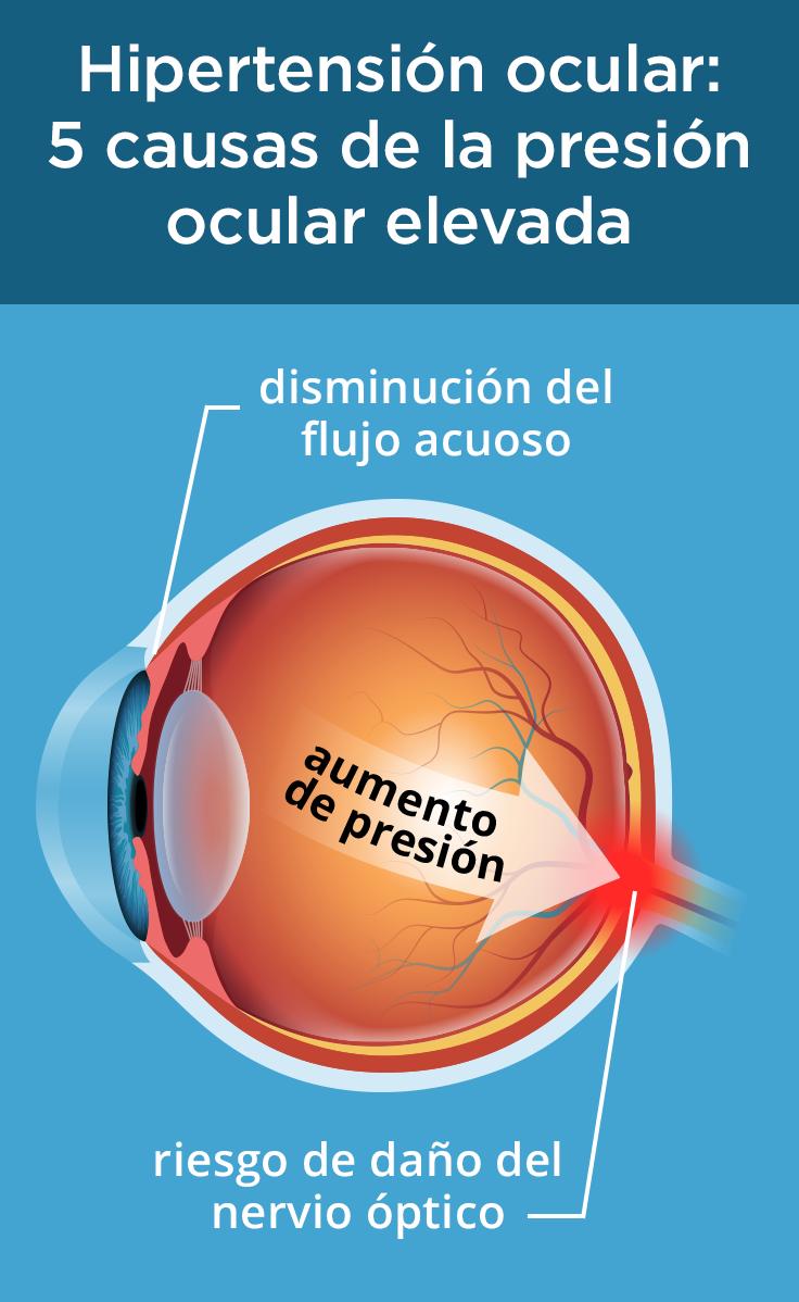 Hipertensión ocular: 5 causas de la presión ocular elevada..