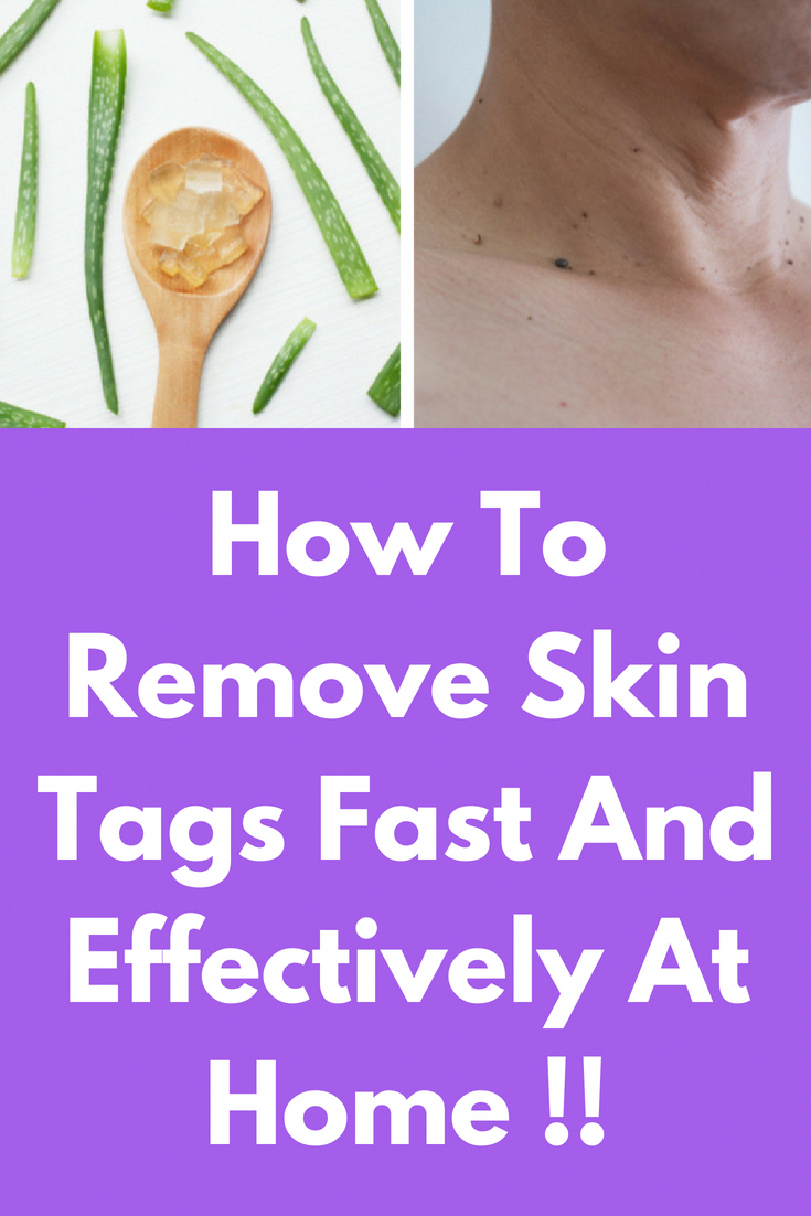 How To Remove Skin Tags Fast And Effectively At Home !! This skin tag removal remedy is 100% effective in removing skin tags easily and permanently. And this will give results in as early as 4 days. Ingredients you will need- 3 crushed garlic cloves 1 tea #TeaTreeOilForDandruff #skintagremedy
