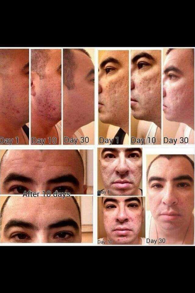Nerium AD Men's results