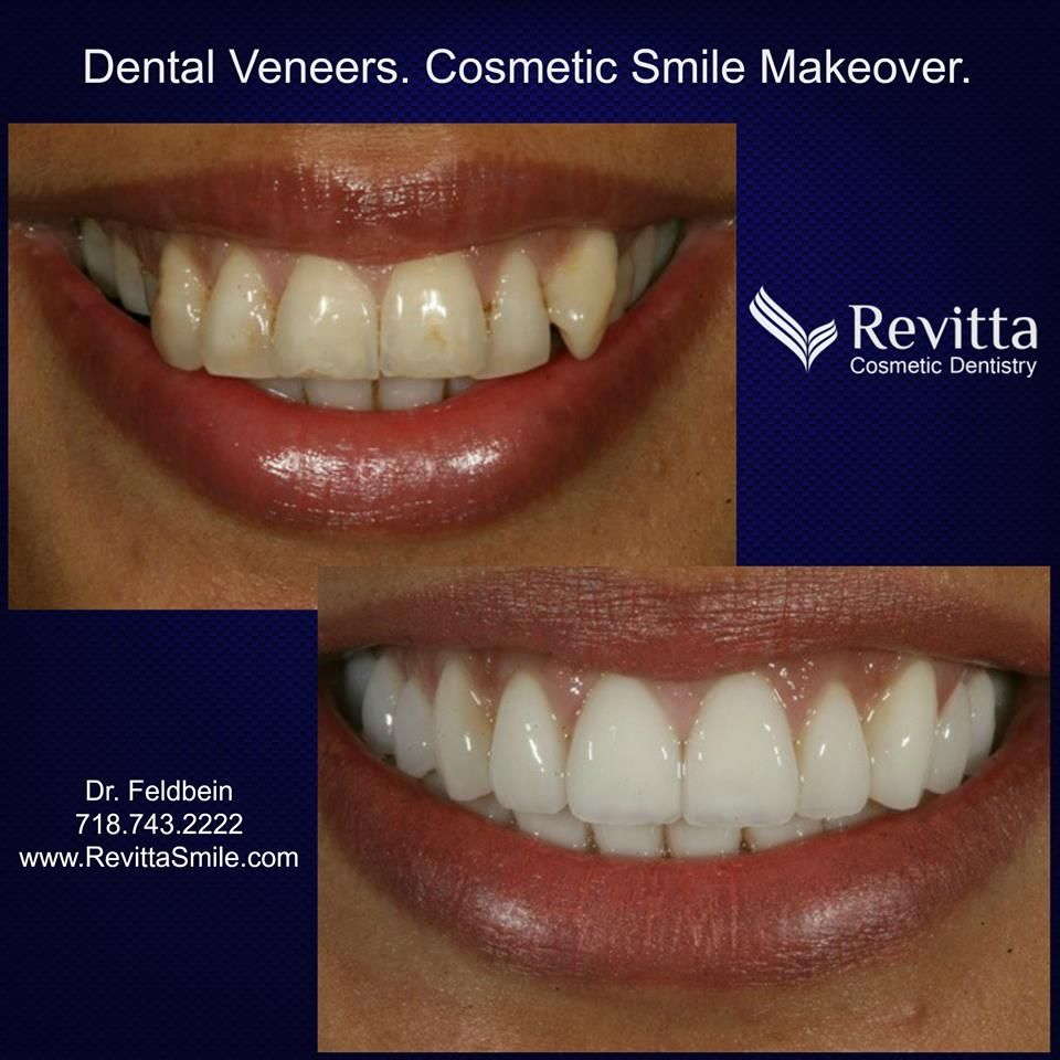 Are your teeth crooked discolored or chipped a cosmetic