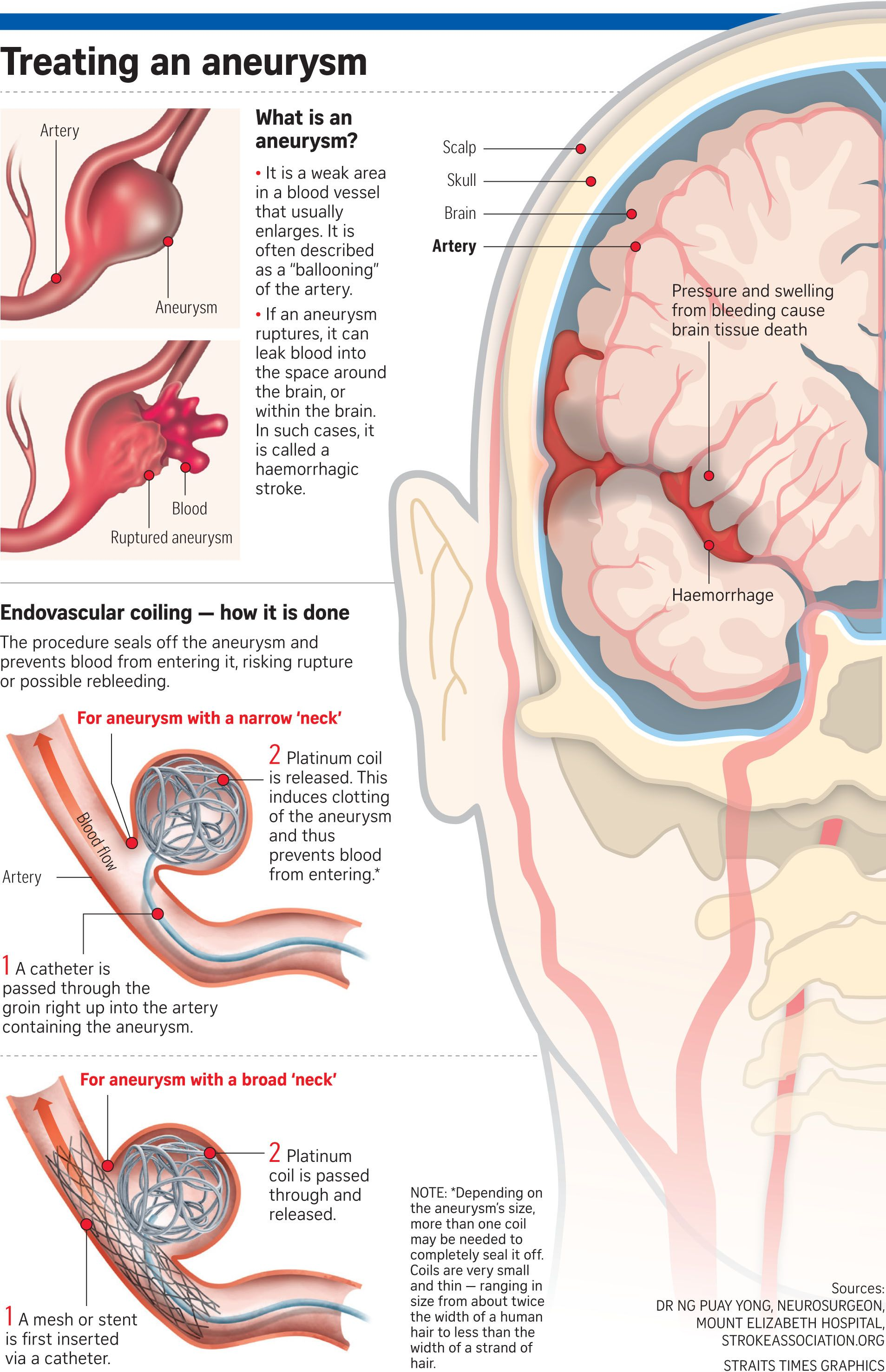 When someone gets a stroke caused by bleeding in the brain, an aneurysm is often the culprit.. Read more at straitstimes.com.