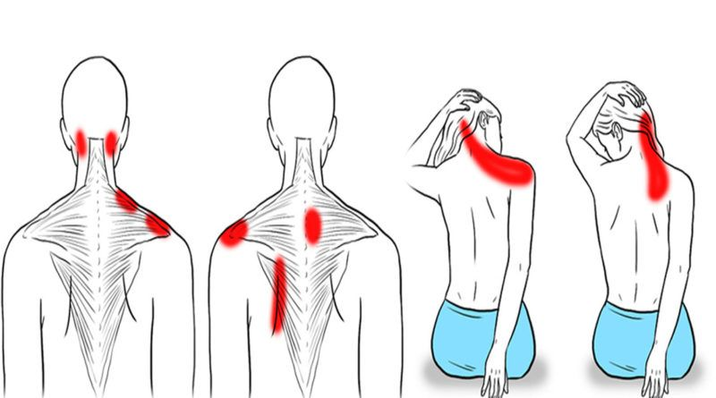 How To Get Rid Of Stress In Shoulders And Neck