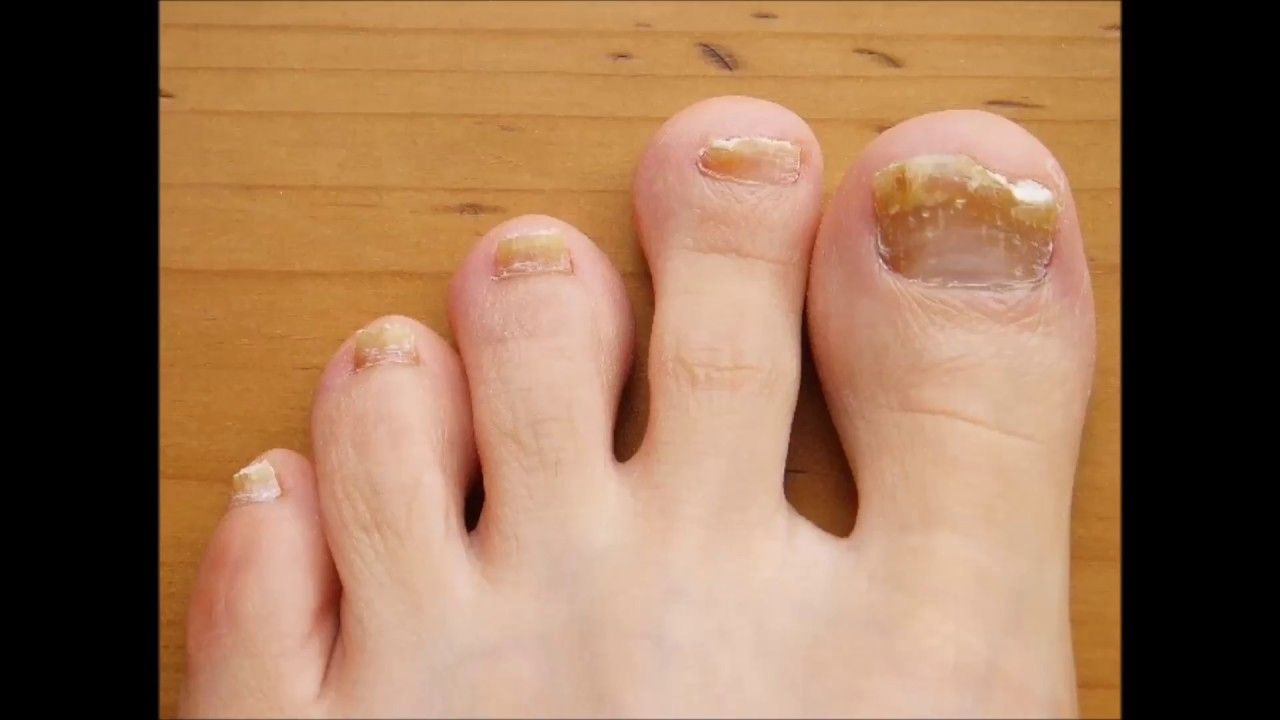 Super Powerful Toenail Fungus Treatment Cure Your Nasty Yellow ...