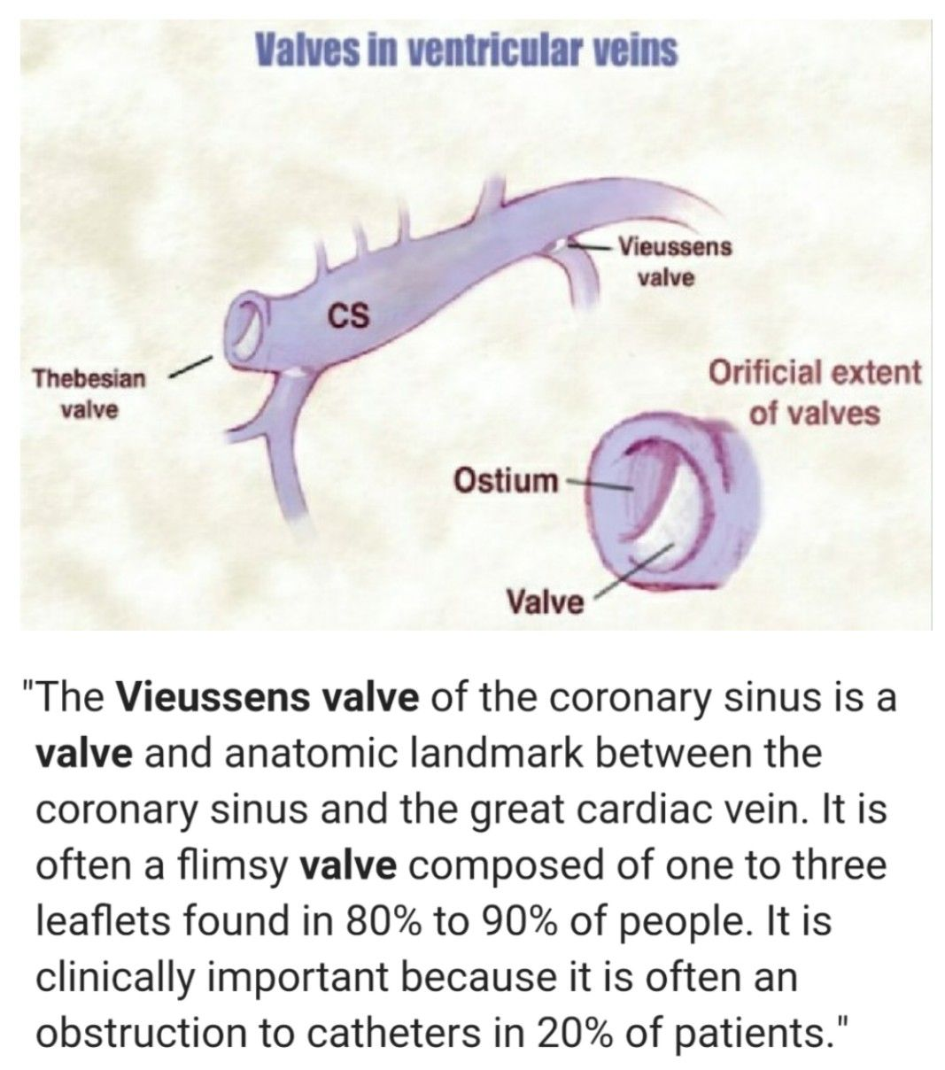 Vieussens Valve ... #heart | Arteries & Veins | Pinterest