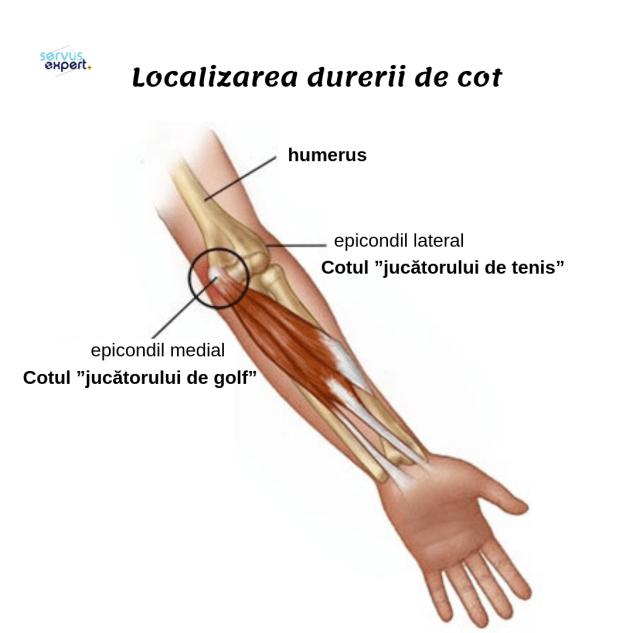 Cot de tenis Splint Ulnar nerv Orthotics, braț, abdomen, Undergarment activ png | PNGEgg