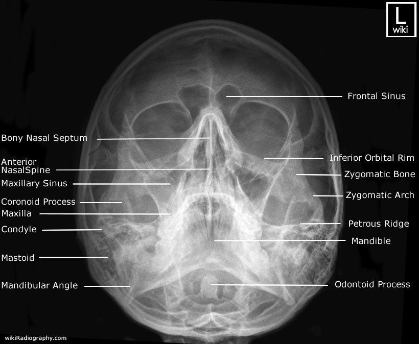 Nasal Bones - Occipito mental (OM) (Waters) - Radiographic Anatomy ...