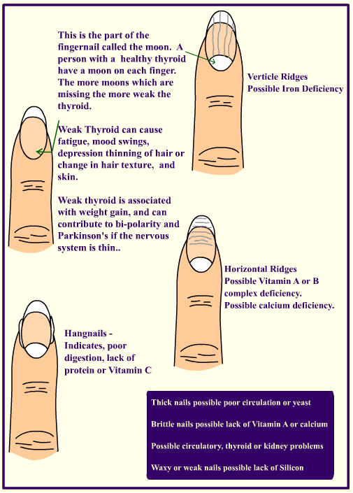 To View A Very Informative And Interactive Infographic That Outlines All Different Nail Shapes Abnormalities