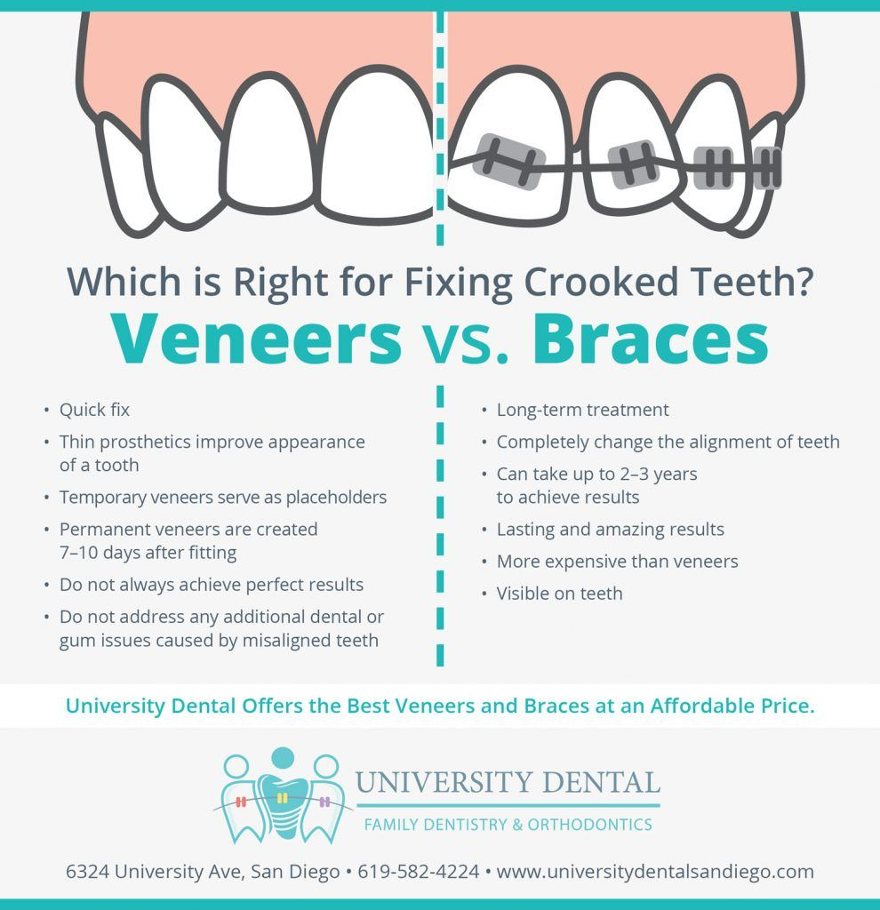 Veneers vs Braces. Which is right for fixing crooked teeth