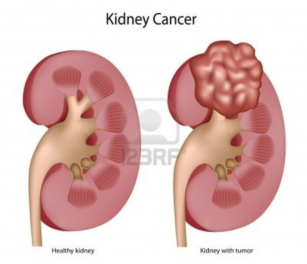 Kidney pain causes locationsymptoms and treatment cancer kidney pain causes locationsymptoms and treatment ccuart Images