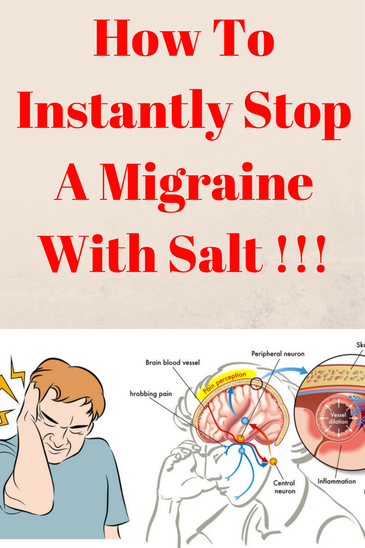 How To Instantly Stop A Migraine With Salt !!!
