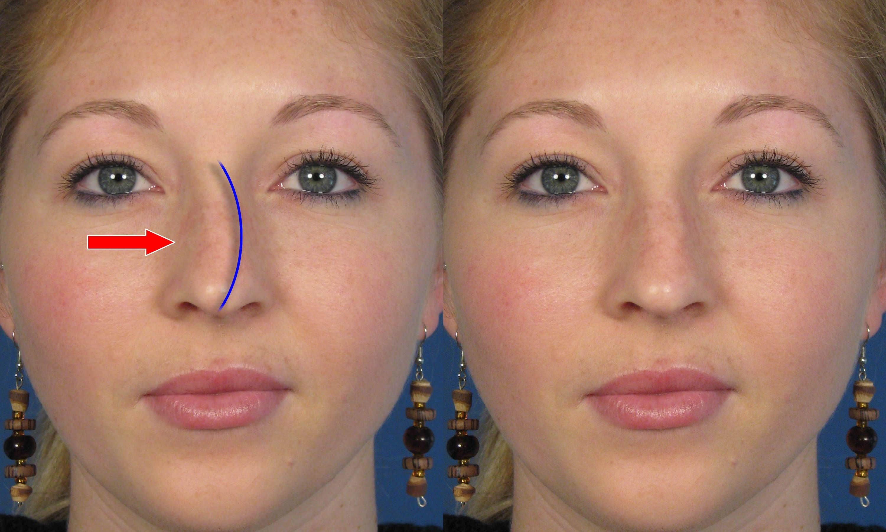 crooked Rhinoplasty Nose job before and after photos ...