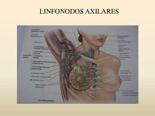Resultado de imagem para linfonodos axilares nivel 1 2 3