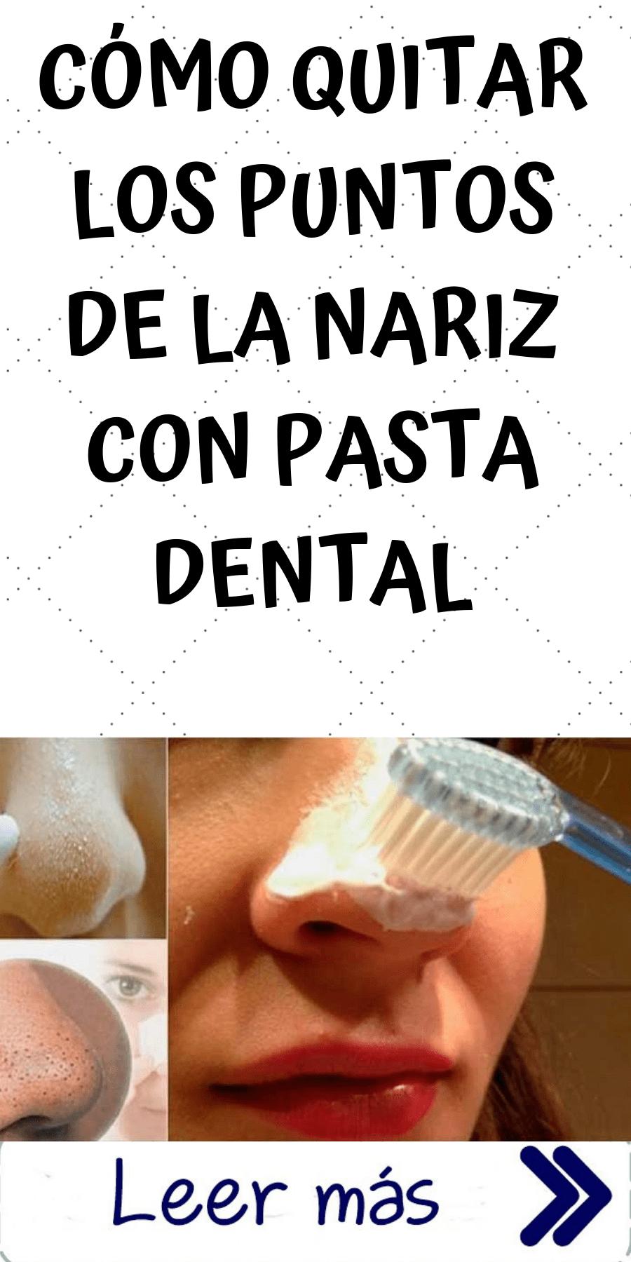 como sacar espinillas con pasta de dientes