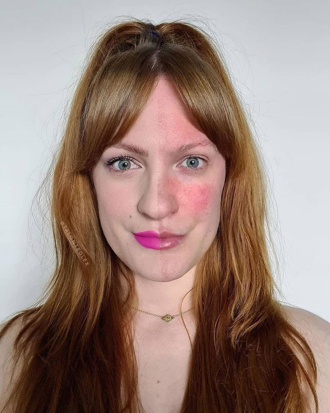 talontedlex Covers her Rosacea with in 2020