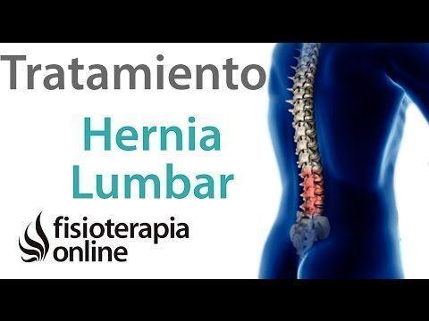 9 Ideas De Hernias Hernia Hernia Discal Hernias De Disco