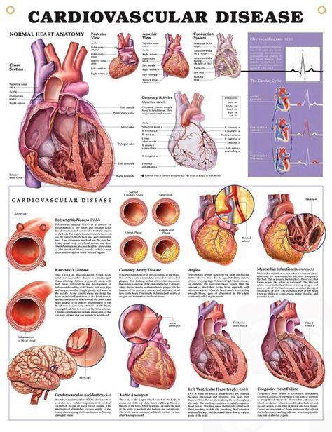 Pin by Nagraj Kommu on study | Pinterest | Cardiovascular disease ...