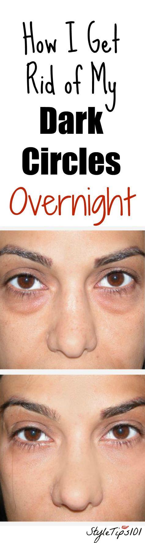 How to Get Rid of Dark Circles Overnight   Dark circles ...
