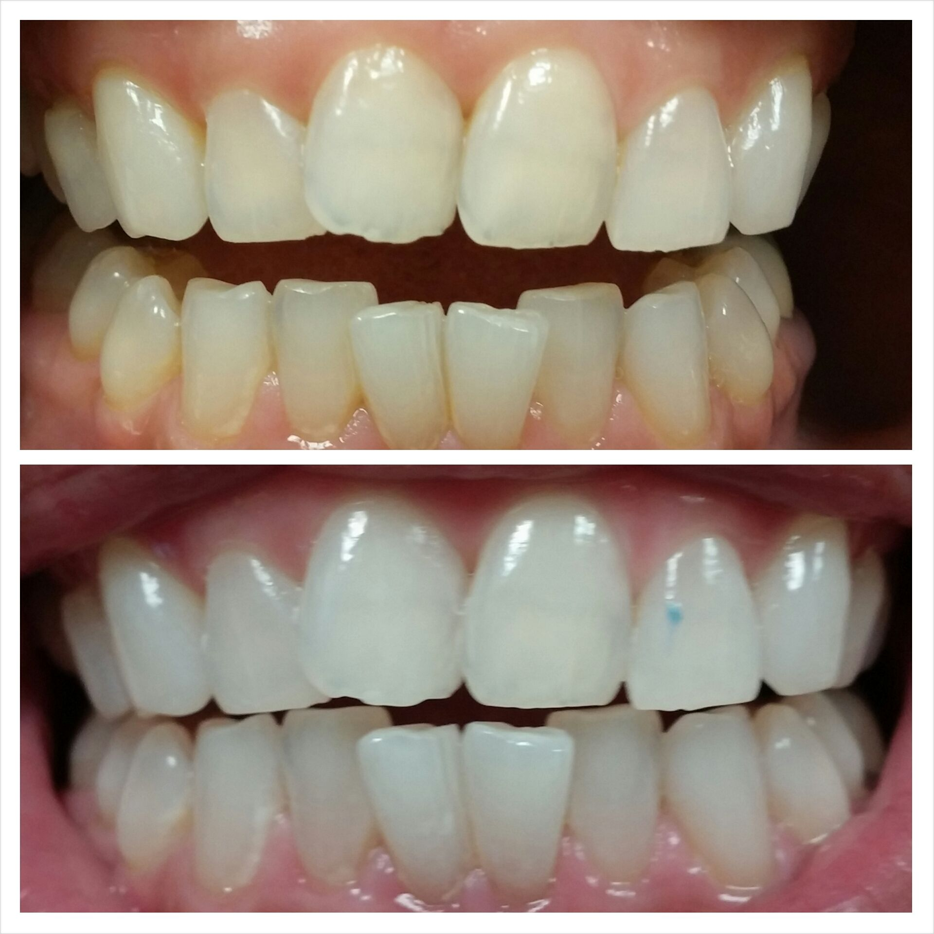 Colgate teeth whitening teeth whitening products pinterest teeth - Laser Whitening Is One Of The Newest Teeth Whitening Treatments