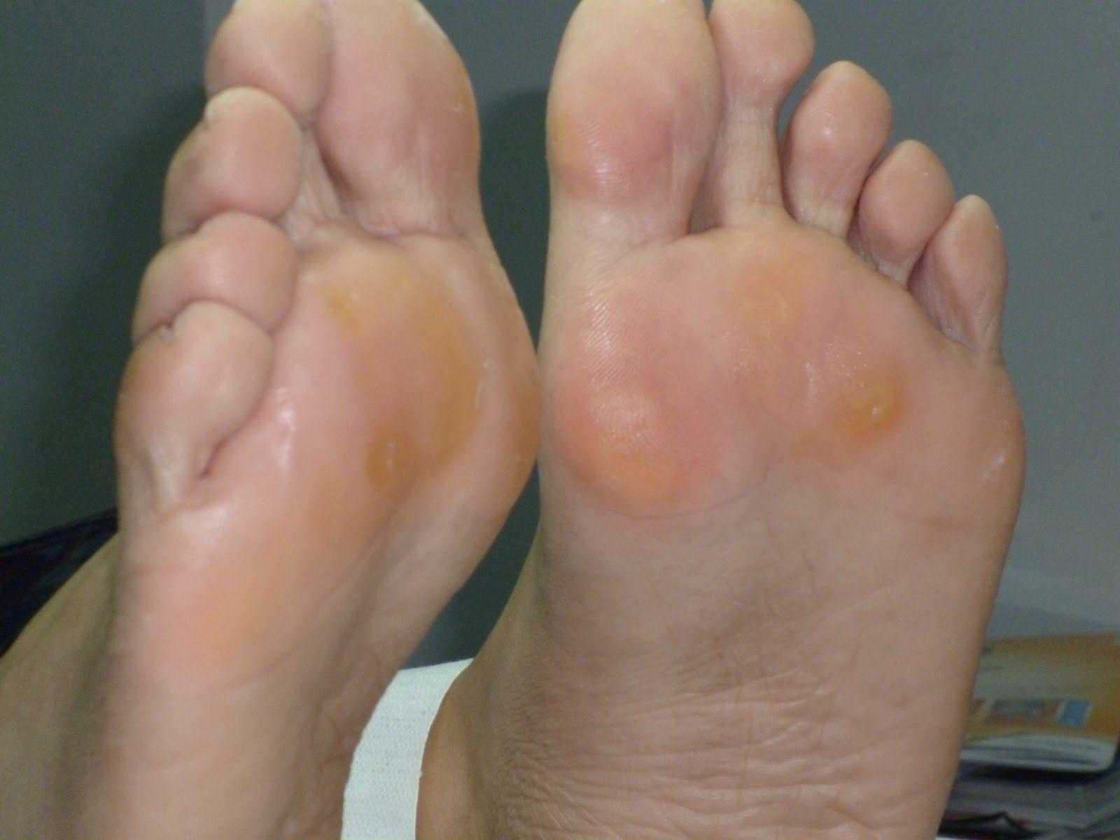 norman de la varicoseza