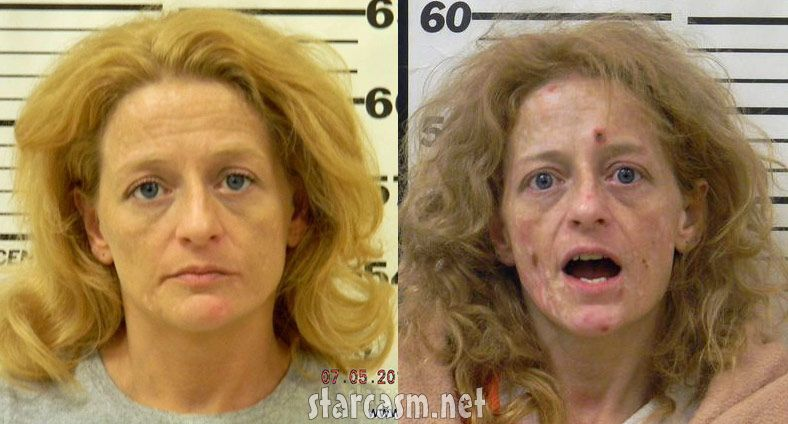 Before and After Meth | Addictions........why do this to ...