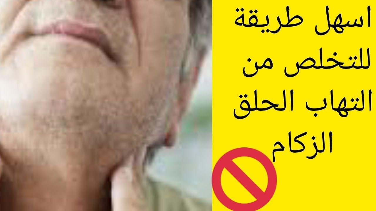 التهاب الحلق الزكام أسهل طريقة لعلاج التهاب الحلق والزكام