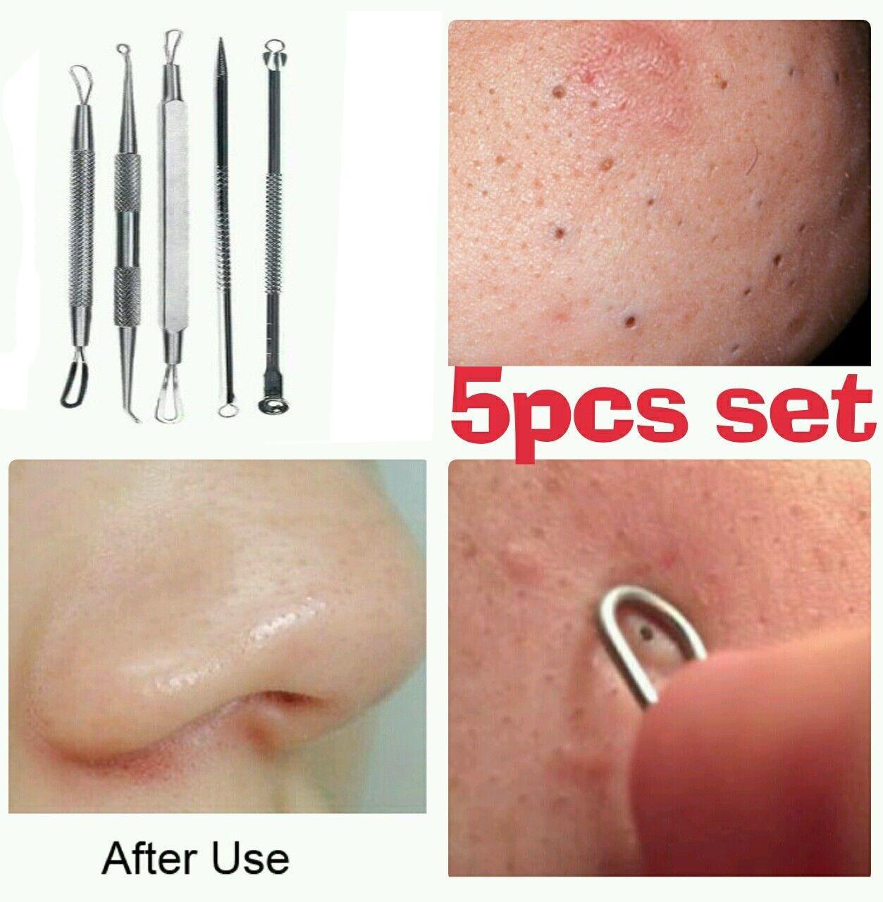 5pcs Blackhead Acne Whitehead Pimple Blemish Extractor Remover Tool Set Badger - Lip Balm Stick Highland Mint - 0.15 oz. (pack of 4)