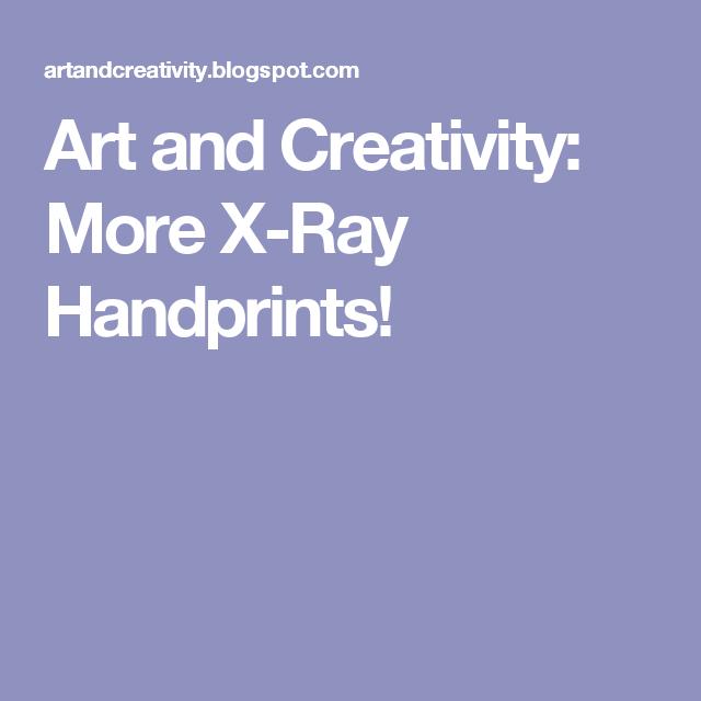 Art and Creativity: More X-Ray Handprints!