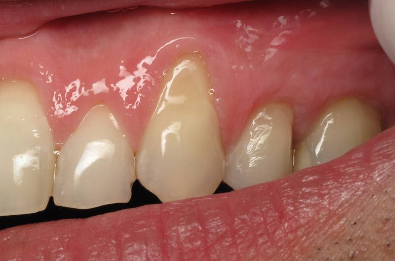 Receding Gums Is Often A Sign Of Gum Disease Learn The